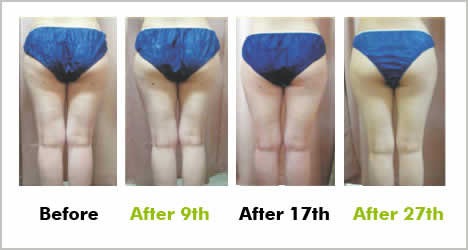Before and after superrslim lipolysis