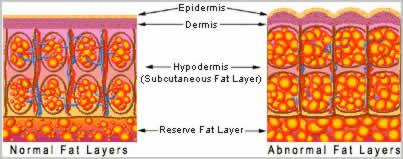 Anti cellulite therapy