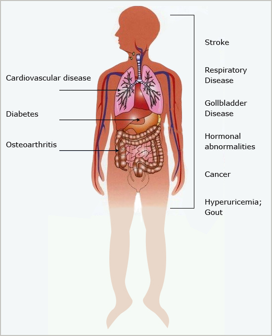 fat 2 fit » diseases associated with obesity, Muscles