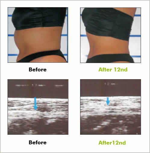 Lipolysis result Before and after